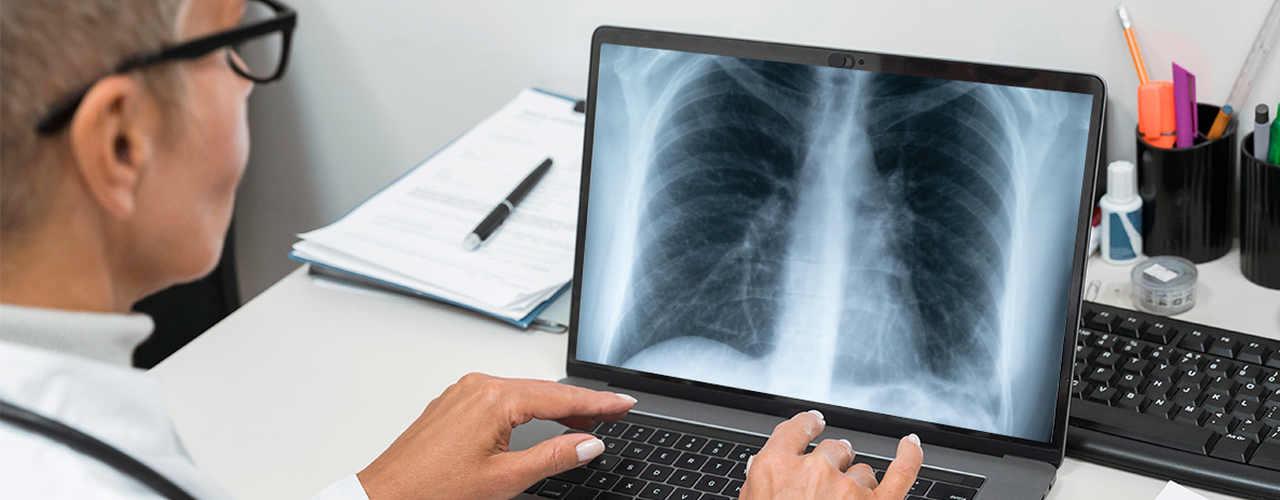 tomografia_computadorizada_tipos_e_indica_es_teleimagem_blog_