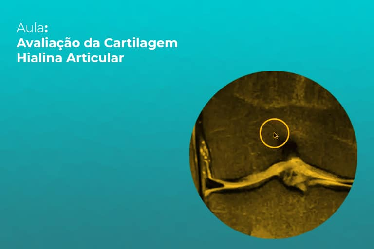 cartilagem-hialina-articular-teleimagem