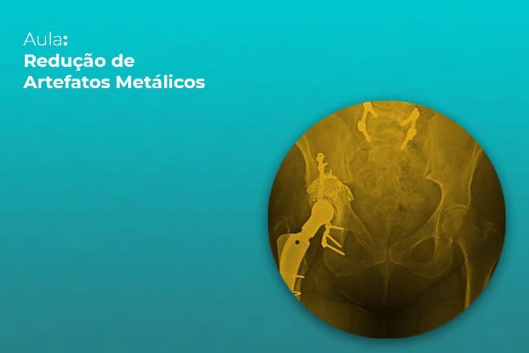 reducao-artefatos-metalicos-teleimagem